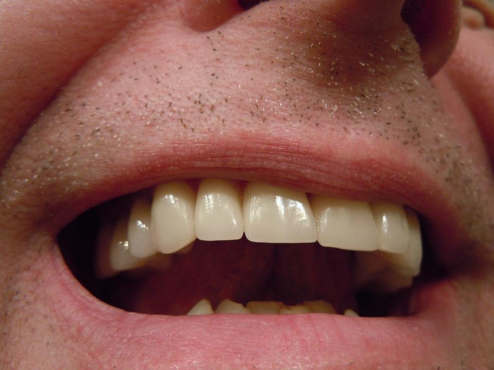 Nadwrażliwość zębów – jak jej uniknąć?